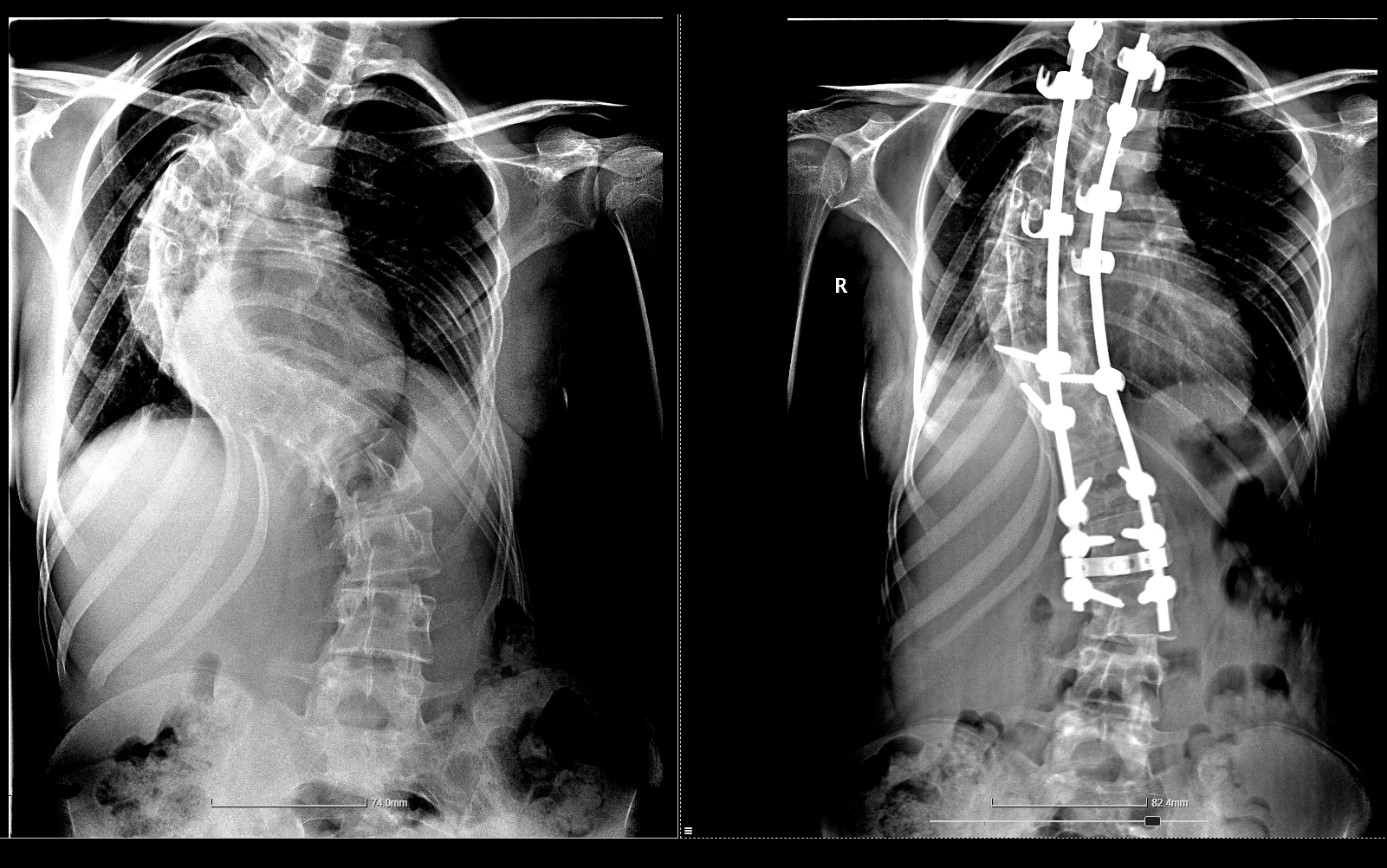 Scolioza operata, radiografie inainte si dupa